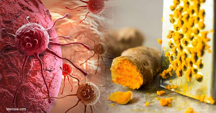 Learn about the health benefits of curcumin, a cancer treatment nutrient found in the Indian spice turmeric, and how you can use it to support your health. https://articles.mercola.com/sites/articles/archive/2011/06/13/this-powerful-herb-changes-your-genes-to-combat-cancer.aspx