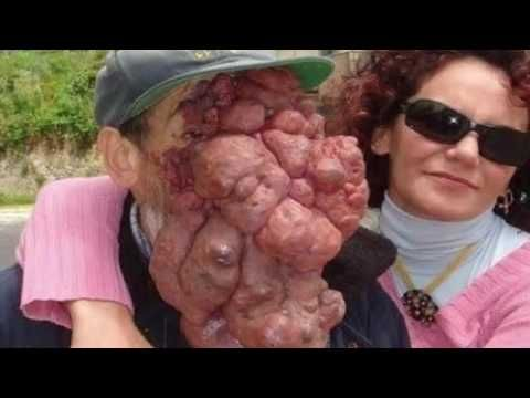 Crazy People That Got The Worlds Worst Tattoos EVER - YouTube