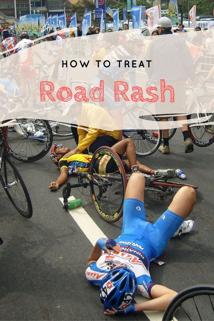 When the road bites back, follow these quick and effective road rash treatment tips and effective ways to avoid scarring.
