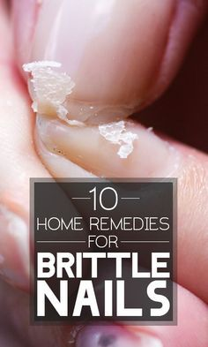 Brittle nails, Home remedies and Remedies on Pinterest