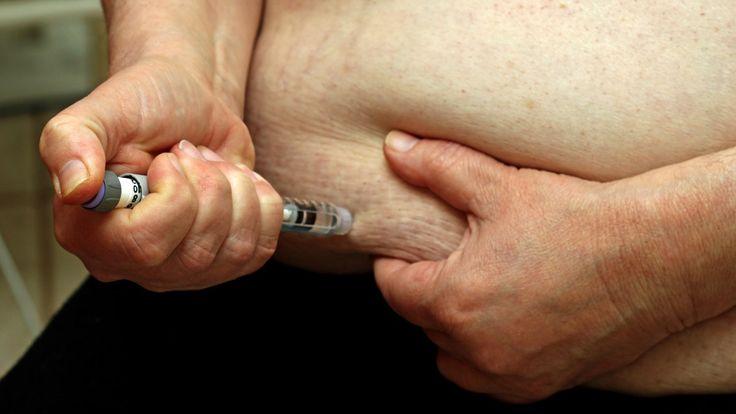 Nytt funn kan gjøre flere diabetikere friske - har funnet link mellom sykdommen og PYY-hormonet - NRK Trøndelag - Lokale nyheter, TV og radio