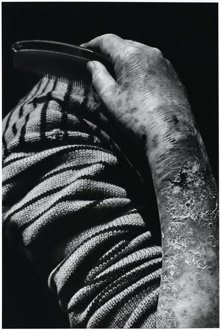 Shomei Tomatsu, Woman with nuclear sickness, 1966, Collection Centre Pompidou, Dist. RMN