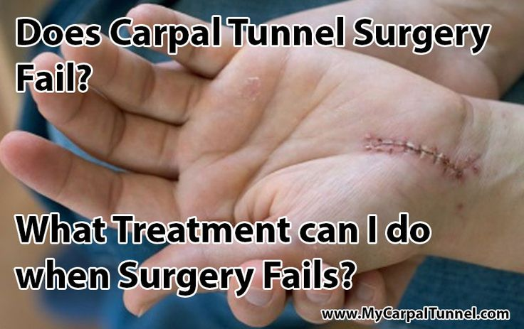 Does Carpal Tunnel Surgery Fail?  Unfortunately, it fails according to patient surveys 40 - 50% of the time.  That is a high failure rate for a surgical procedure.  What treatment is effective  after a failed Carpal Tunnel Surgery?  Learn more about the Natural Stretching Treatment developed by Doctors that works for 97% of people.  You must wait at least 2 months after surgery. Doctors provide best way to treat Carpal Tunnel after a failed surgery.