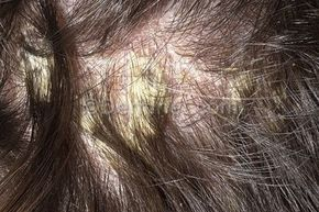 Read on to know what causes dry flaky scalp, the treatment options you can chose from and various home remedies that can help you get rid of the dry flaky scalp. You will also get useful tips and options for dry flaky scalp shampoo.