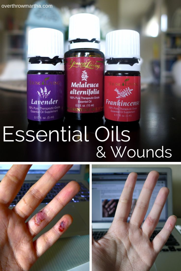 I Healed A Wound And Prevented Infection Using Essential Oils It
