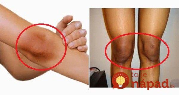Ako odstrániť nepekné tmavé škvrny na prstoch, lakťoch a kolenách?
