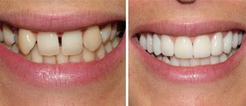 How To Straighten Teeth Without Braces - Orthodontics Dentists - New York, NY