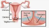 Cervical intraepithelial neoplasia is a precancerous condition in which abnormal cell growth occurs on the surface lining of the cervix or endocervical canal, the opening between the uterus and the vagina.