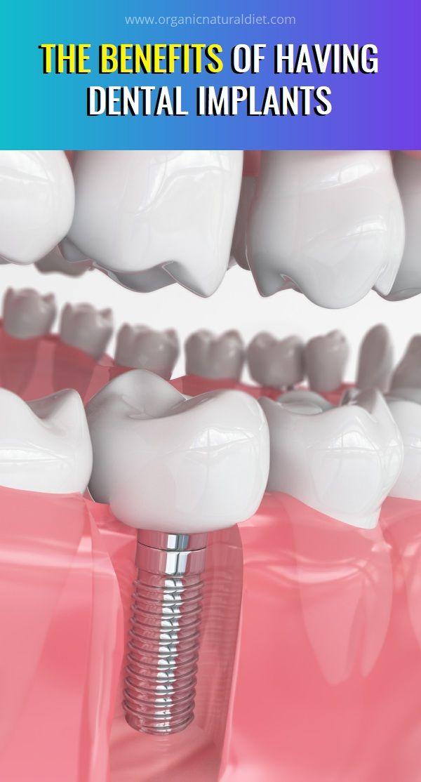 The Benefits Of Having Dental Implants Dental Implants Natural