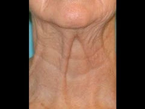 Smooth Out Wrinkly Neck Skin: Home Neck Exercises To Straighten And Improve Neck Posture And Curve - YouTube