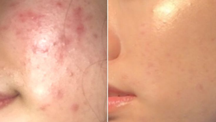 Michelle Hoang, from Houston, Tex., shared every single product she uses in her skin-care routine to fight acne, and her post is going viral.