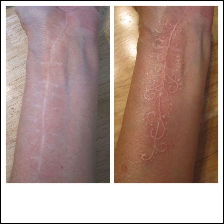 Skin Color Tattoo To Cover ScarTattoo Themes Idea   Tattoo Themes Idea