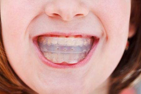 Seguimos con la serie de preguntas sobre ortodoncia : Que viene después de la Ortodoncia?