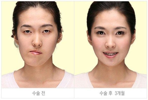 Young Koreans Before And After Plastic Surgery 62 Photos Klyker Com Korean Plastic Surgery Cosmetic Surgery Plastic Surgery