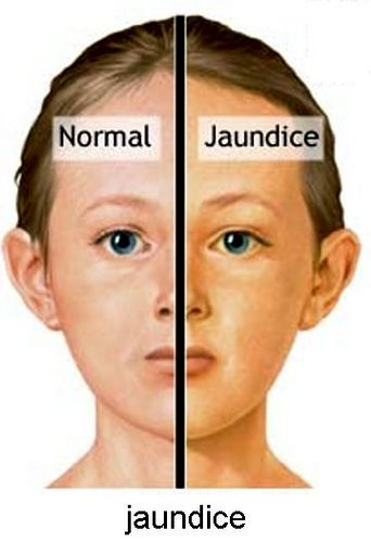 Natural Remedies For Jaundice In Adults