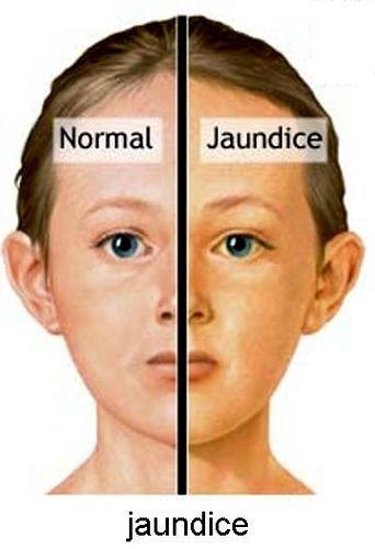 47 Best Images About Jaundice On Pinterest