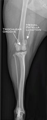 MPL pre-surgery X-ray, Anterior - Posterior View