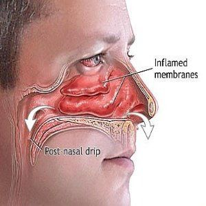 natural remedies for sinus infection