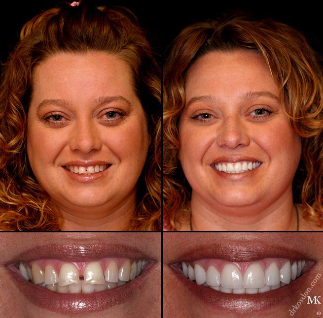 Porcelain Dental Veneers Manhattan New York City NY http://www.thedaviedentist.com/home