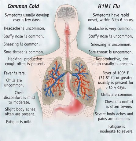 Common cold throat