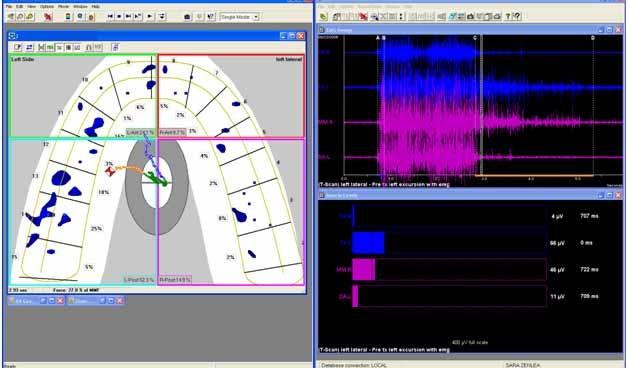BioEMG III  je snímacím zařízením k záznamu aktivit žvýkacích a obličejových svalů.  Software umožňuje intuitivní vizualizaci reakcí 8 povrchových elektrod.