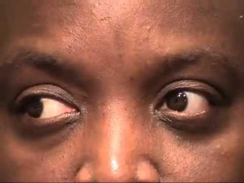 Internuclear Ophthalmoplegia - YouTube