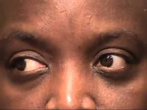 Internuclear Ophthalmoplegia - YouTube