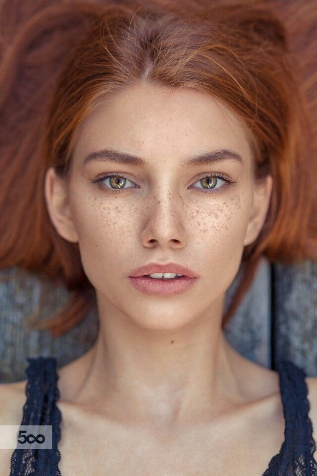 freckles                                                                                                                                                      More