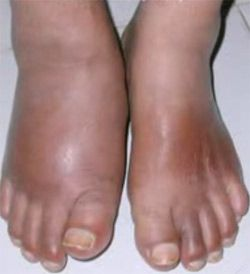 idsa diabetic foot infection guidelines