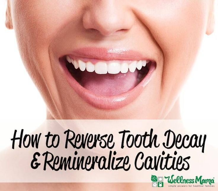 How to Remineralize Teeth Naturally & Reverse Tooth Decay  Did you know it's possible to remineralize teeth naturally? Teeth must be taken care of from the inside as well as the outside. This is how you do it.