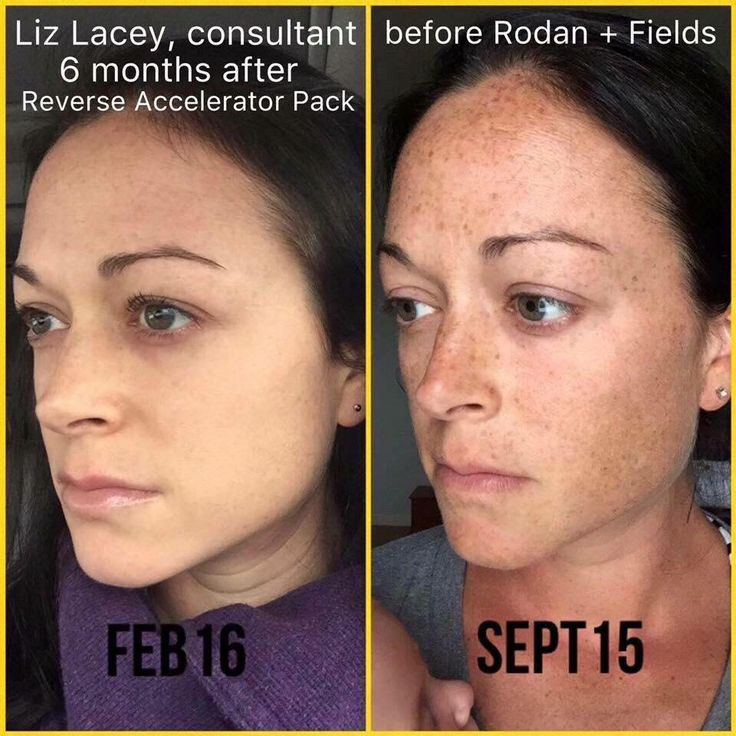 how to avoid freckles with melanotan
