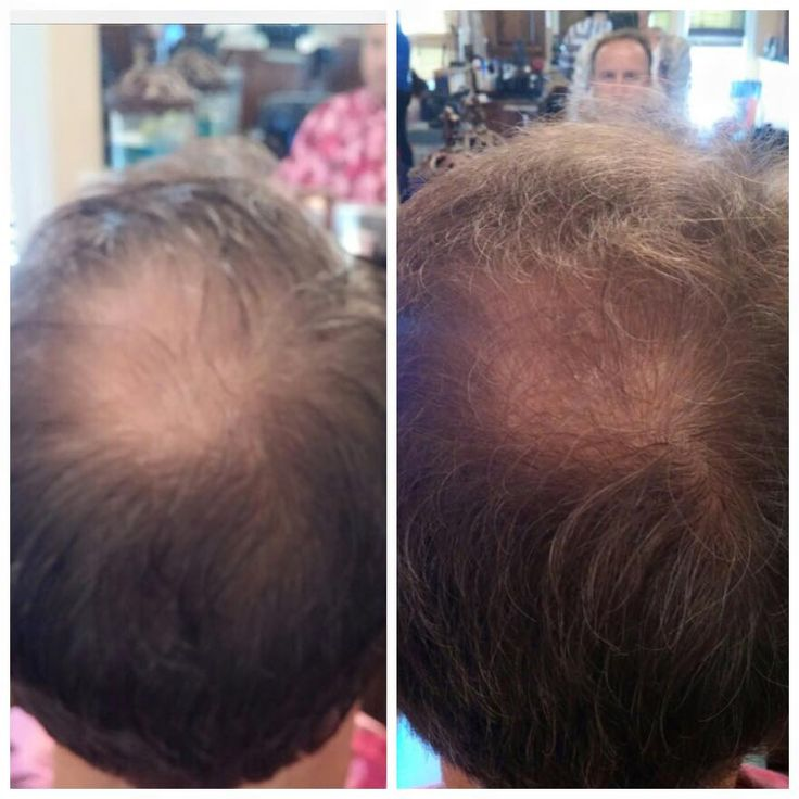 Just Had A Customer Send This Picture Taken 3 Weeks Apart