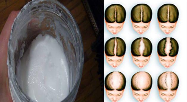 Como hacer correctamente shampoo de bicarbonato de sodio, salvara tu cabello o recuperar el pelo perdido. - TuSalud.Info