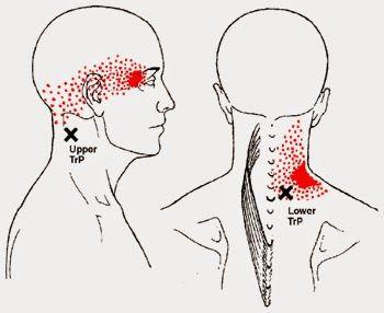 A Cefaleia Cervicogênica é um tipo de dor de cabeça originada de pontos-gatilho da região cervical.    Dentre as causas da cefaleia cervi...