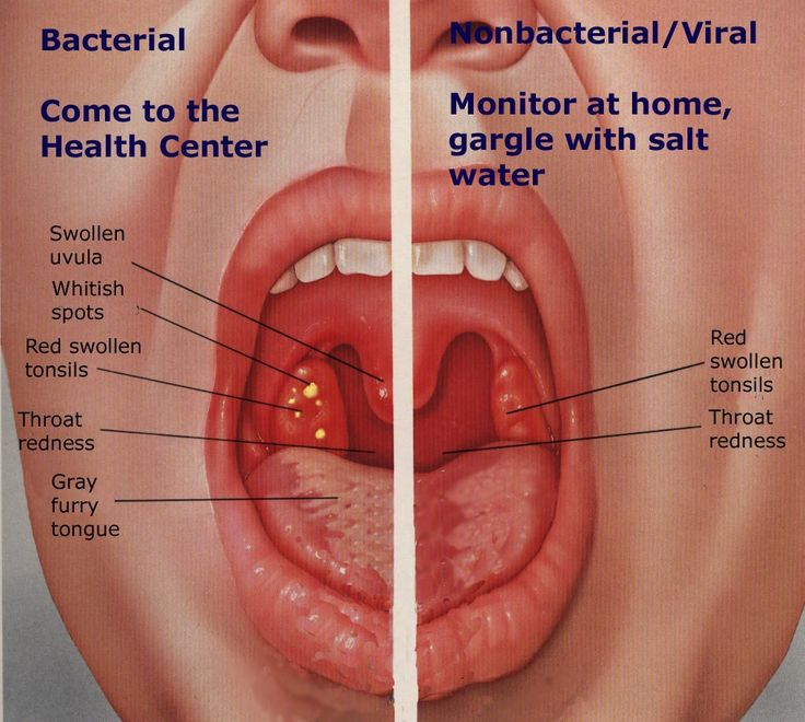 Sore throat, tonsillitis, pharyngitis | Entries in category sore throat, tonsillitis, pharyngitis | Open community: LiveInternet - Russian Service Online diary