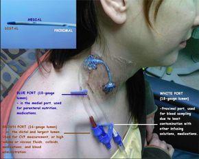 "lkaw: ""nursetinkerbell: "" Central Venous Catheter:) "" Useful! """