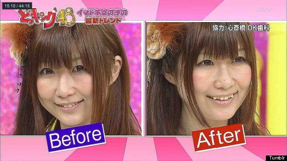 Yaeba: Japanese Double Tooth Trend Will Give You A Costly Crooked Smile (PICTURES)