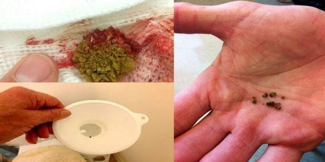 Un articol de Cristian Iacov  Rinichii reprezinta una dintre cele mai importante parti vitale din organism, avand rolul de eliminare a tuturor toxinelor si excesului de sare din corp. In orice caz, pentru ca ei sa functioneze mai bine, trebuie sa fie curatati din cand in cand.  De fapt, rinichii absorb sarurile si …