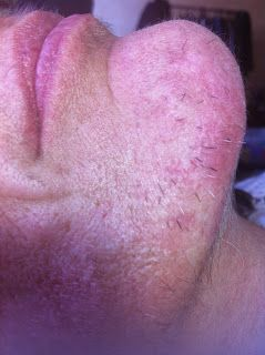 Adrien Sanchiz Electrolysis : Epilation Electrolyse sur le visage / Electrolysis hair removal on the face
