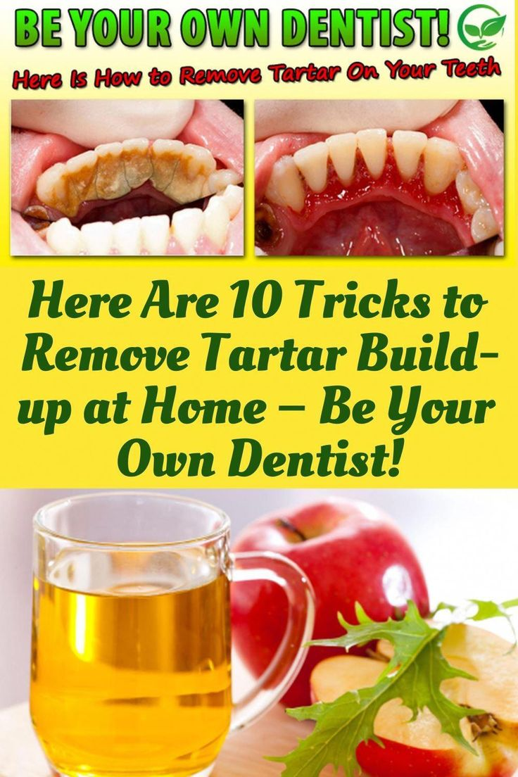 Here Are 10 Tricks to Remove Tartar Buildup at Home Be