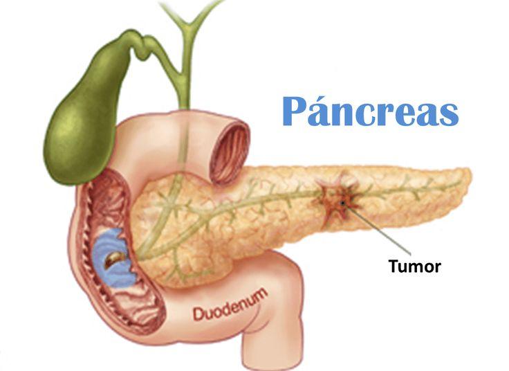 Cáncer de páncreas, 5 señales de alerta que debes conocer