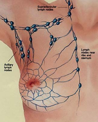 how to help swollen lymph nodes in armpit