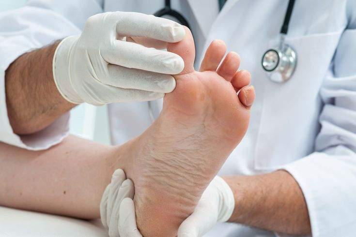 Pedorthist Why Do Feet Need A Pedorthist? Feet are very complex. They contain a quarter of the bones in the body. They are comprised of a network of muscles, tendons, ligaments and joints, which play an important role in keeping you mobile.