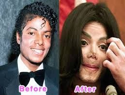 celebrities bad plastic surgery before and after pictures - Google Search