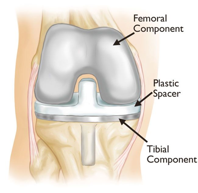 Revision Total Knee Replacement-OrthoInfo - AAOS