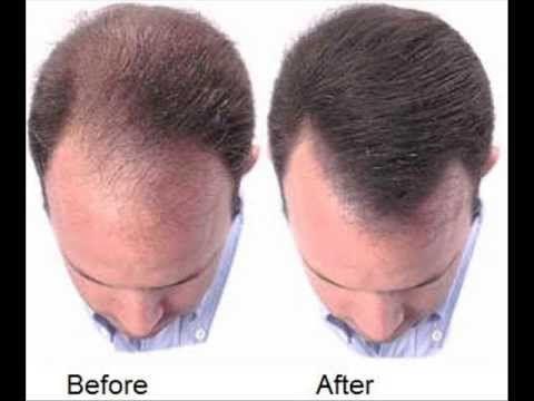 tratamento queda de cabelo