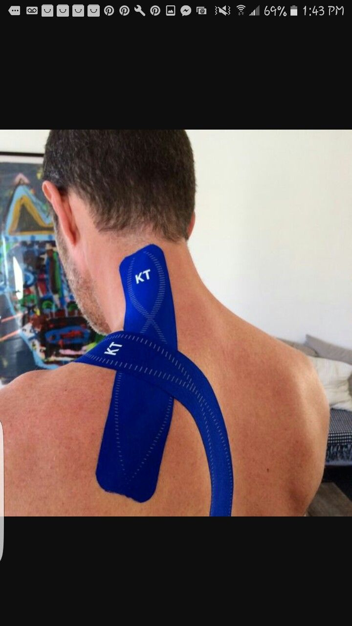 Kinesio taping method for Cervical dystonia