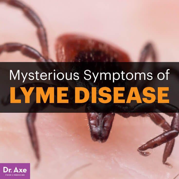 lyme disease symptoms - dr. axe http://www.draxe.com #health #holistic #natural