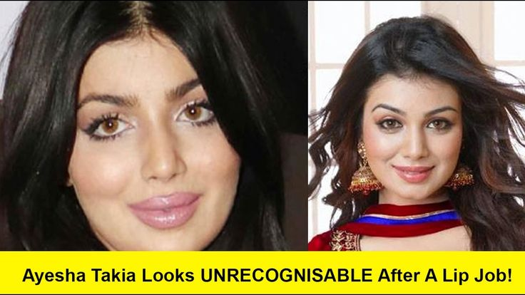 Ayesha Takia Looks UNRECOGNISABLE After A Lip Job! |आयशा टाकिया