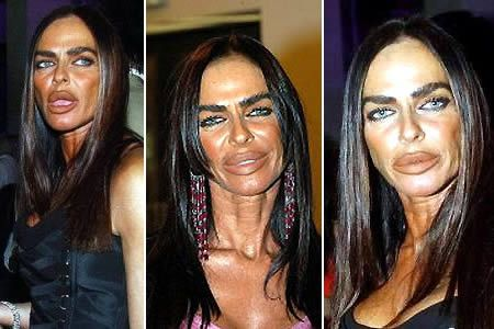 Botox Celebrity Disasters Cream Roth - absolute-project.eu